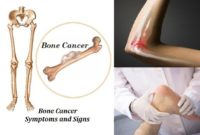 Bone Cancer Signs
