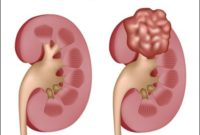 Kidney Cancer Symptoms In Females