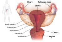 Test For Cancer Ovarian