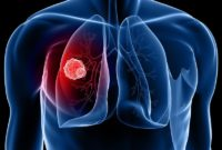 signs of lung cancer in men