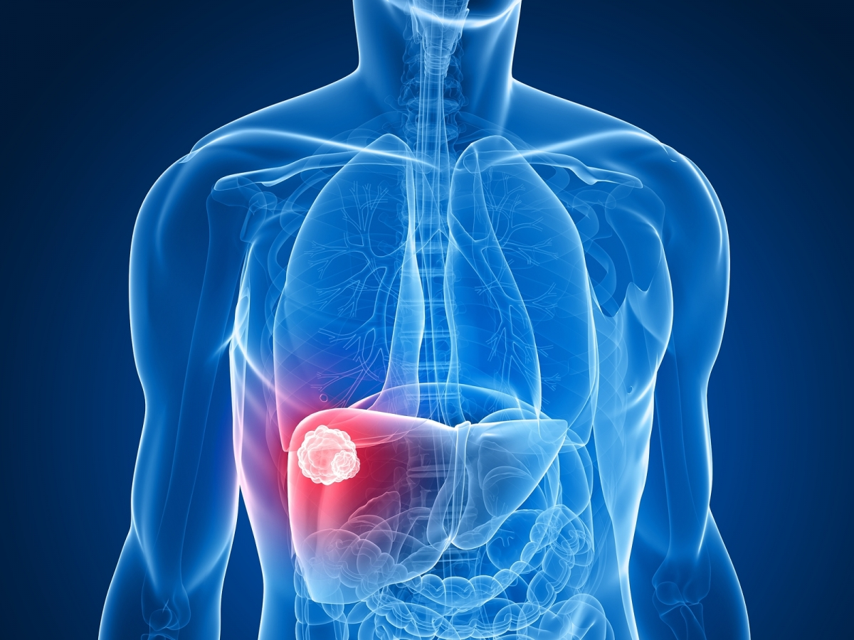 Liver Cancer Life Expectancy